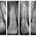 É Possível Protrair A Maxila Com Mini-implantes Ortodônticos Associados A Elásticos Intermaxilares