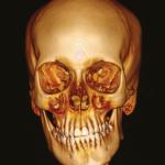 Estudo tomográfico das características morfológicas da mandíbula e articulação temporomandibular em pacientes com suspeita de hiperplasia condilar unilateral