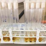 Comparação dos efeitos antibacterianos contra o Strep- tococcus mutans, em diferentes intervalos de tempo, de  diferentes resinas ortodônticas contendo nanopartículas