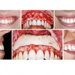 Covid-19: suas consequências para a Ortodontia